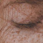 Obat Penghilang Flek Hitam di Apotik